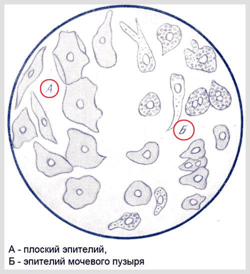 Плоский эпителий в моче: нормы у женщин, мужчин, детей